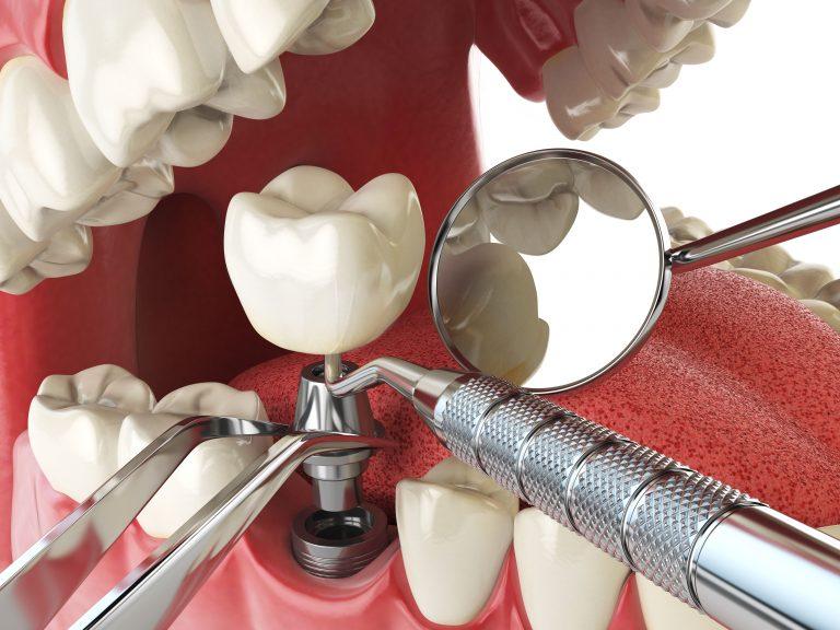 Denti Well Plus Itagui Medellín