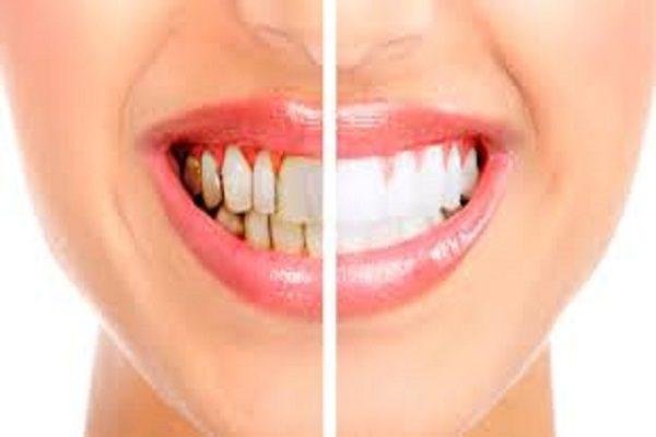 Reahilitacion Oral